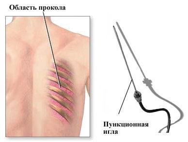 Чрескожная пункционная биопсия