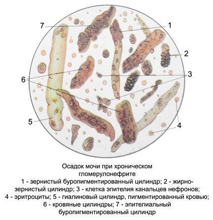 Трипельфосфаты в моче у человека