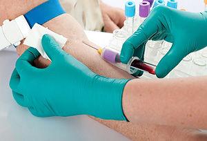 Посев крови на стерильность
