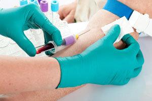 Анализ крови на сифилис (RW)