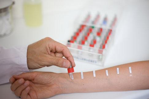 Тест на аллергены: кожная проба