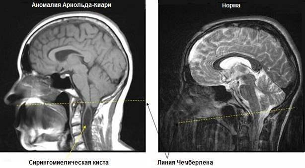 Болит мышца шеи сзади справа