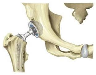 Эндопротезирование тазобедренного сустава в архангельск как восстановить сгибание в локтевом суставе после застаревшего перелома