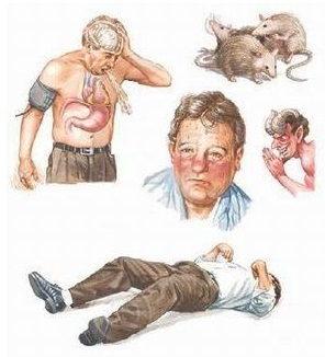 Белая горячка симптомы лечение