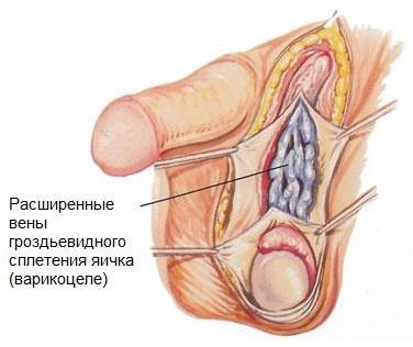 лечение мужского бесплодия препараты Эффективное лечение мужского бесплодия, эректильной.