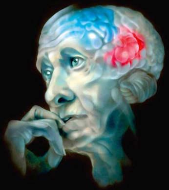 Единичные очаги лейкоэнцефалопатии сосудистого генеза