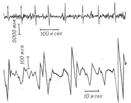 Электромиография при спинальной амиотрофии при зубной боли болит голова