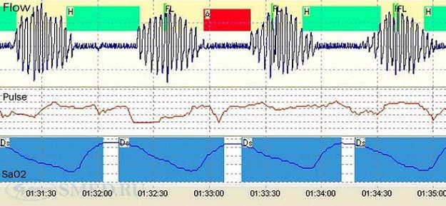 Синдром обструктивного апноэ сна (СОАС), цены на