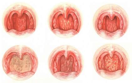 Хронический назофарингит