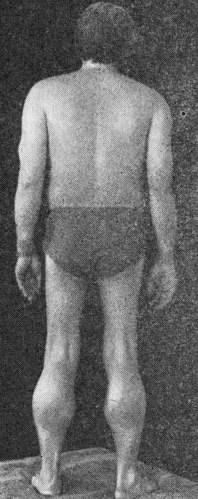 дистрофия клитора фото заболевание