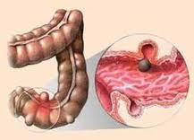дивертикулез толстой кишки, болезни органов пищеварения (включая печень, поджелудочную железы и т.п.), колопроктология, диагностика дивертикулеза толстой кишки, причины дивертикулеза толстой кишки, осложнения дивертикулеза толстой кишки