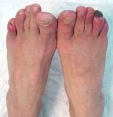 Лечение с пиявками варикоз на ногах