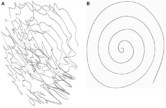 Тест с Архимедовой спиралью при эссенциальном треморе