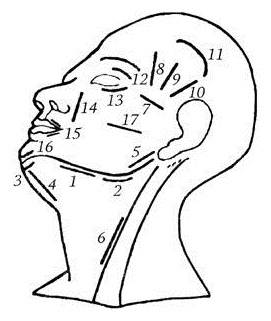 Схема разрезов для вскрытия флегмон челюстно-лицевой области