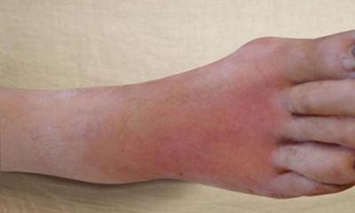 флегмона фото ноги