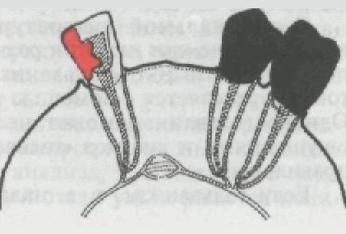 Гальванический элемент в ротовой полости