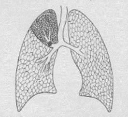 причины гнилостного запаха изо рта у взрослых
