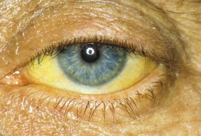 Симптомы вирусного гепатита B