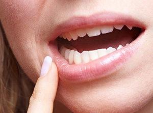 Дефицит витамина В6 приводит к воспалению слизистой полости рта