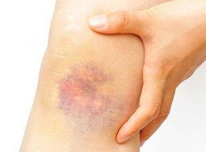 Недостаточность витамина С проявляется гематомами на коже