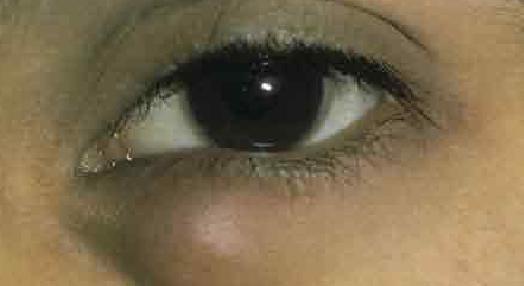 Стоимость лазерной коррекции зрения краснодар