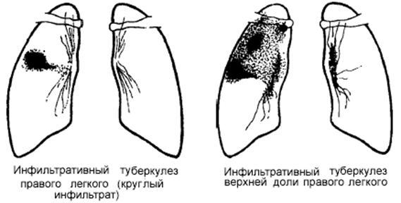 Туберкулез легких (очаговый и