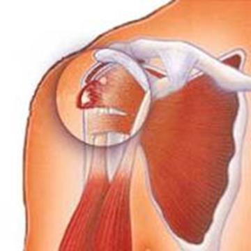 Изображение - Обызвествление плечевого сустава лечение k_tendinit