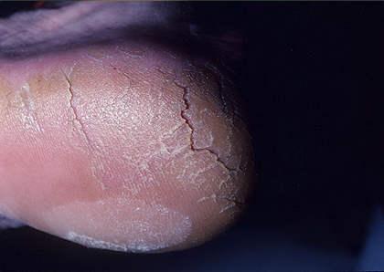 фото подошвенный гиперкератоз