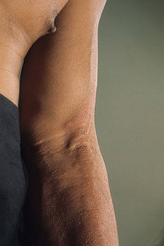Боль животе после выкидыша