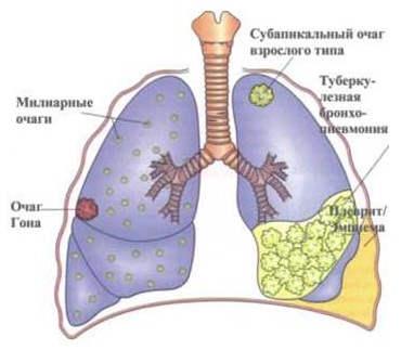 туберкулез легких (милиарный), болезни органов дыхания, пульмонология, причины туберкулеза легкого (милиарного), признаки туберкулеза легкого (милиарного), профилактика туберкулеза легкого (милиарного)