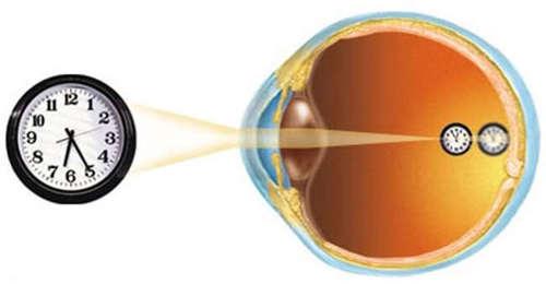 Как востановить зрение витамины