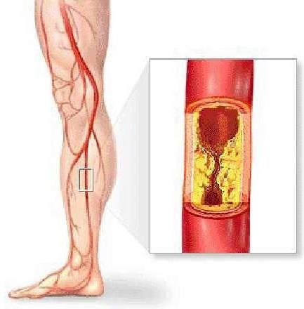 Высокий холестерин в крови диета