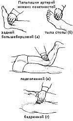 Точки исследования пульсации на магистральных артериях нижних конечностей