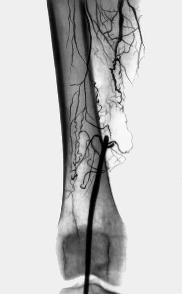 Облитерирующий атеросклероз нижних конечностей: причины, лечение ...