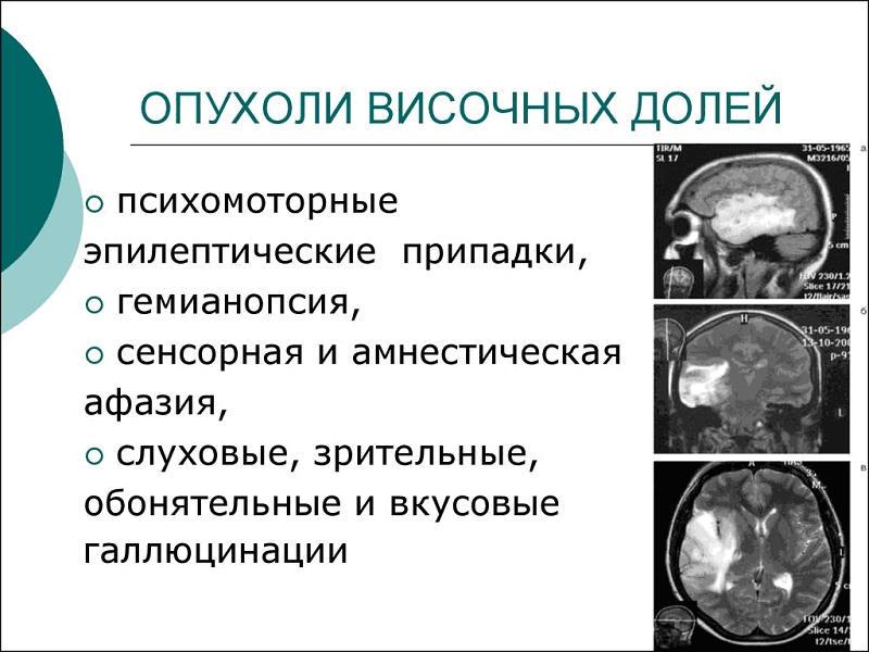 Клиника опухолей височной доли