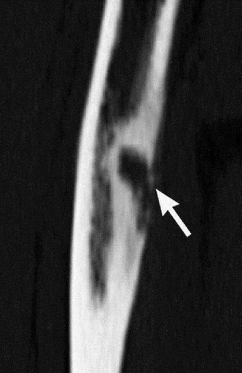 остеомиелит бедренной кости у новорожденного