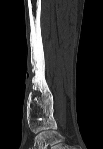 липецк ортопедия диагностика лечение суставы