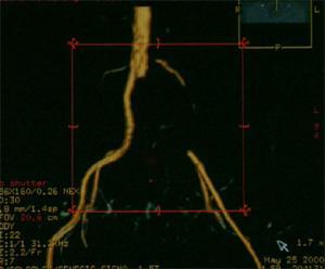 Тромбоэмболия левой общей подвздошной артерии в устье отхождения от аорты