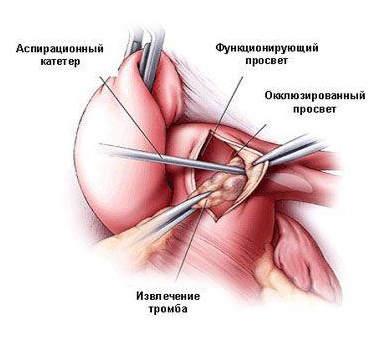 Циррозе печень варикозная
