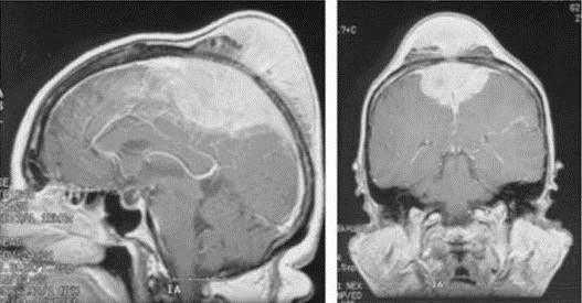 МРТ головного мозга с внутривенным контрастированием при парасагиттальной менингиоме