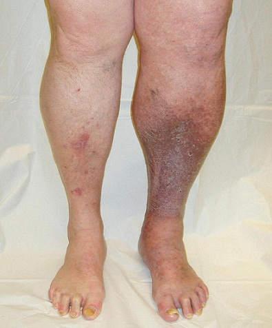 Посттромботическая болезнь нижних конечностей: причины, лечение ...