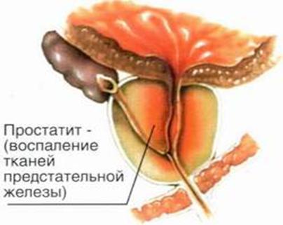 Острый бактериальный простатит: симптомы, диагностика, лечение ...