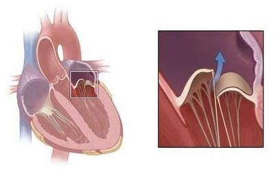 Хроническая ревматическая болезнь сердца: причины, лечение ...
