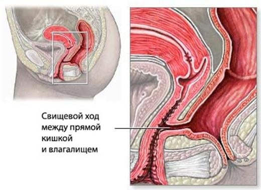 rektovaginalniy-svish-posle-luchevoy-terapii