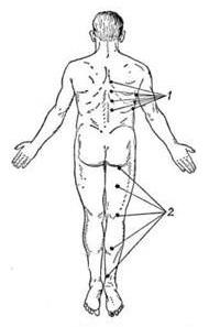 Болезненность в точках Валле при поражении седалищного нерва