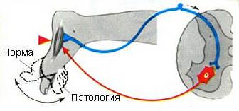 Снижение или выпадение ахиллова рефлекса при поражении седалищного нерва