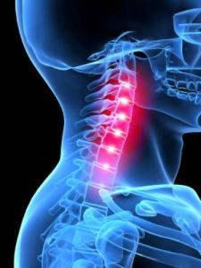 Шейно-плечевой синдром: онлайн-диагностика, симптомы, осложнения ...