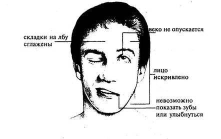 Синдром Россолимо-Мелькерссона