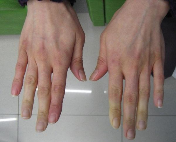 Симптомы смешанного заболевания соединительной ткани