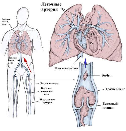 Тромбоэмболия легочной артерии: признаки, лечение, осложнения ...